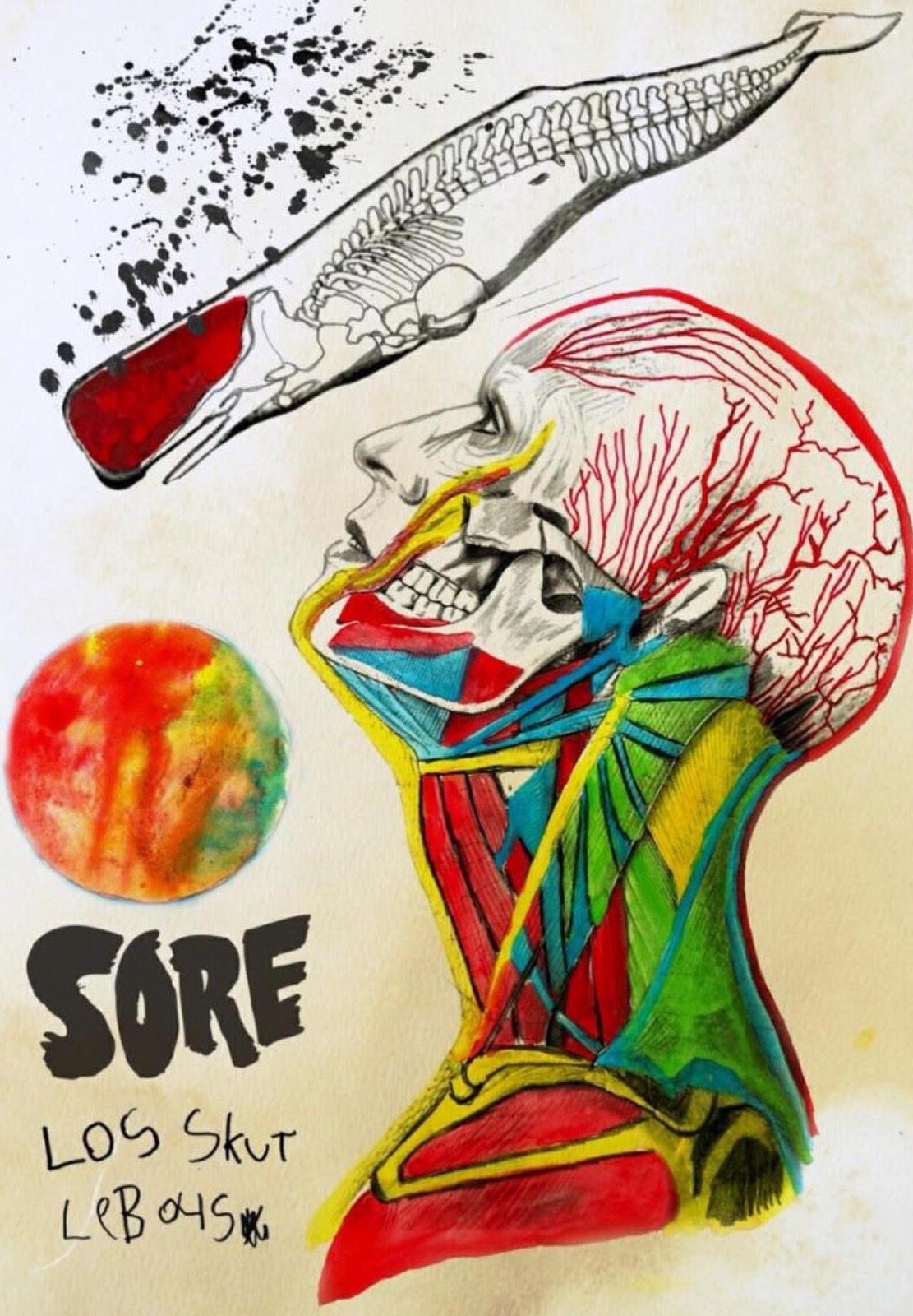 sore_cover